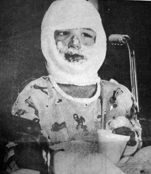 at the Montpelier, Idaho hospital after the Cokeville bombing ...